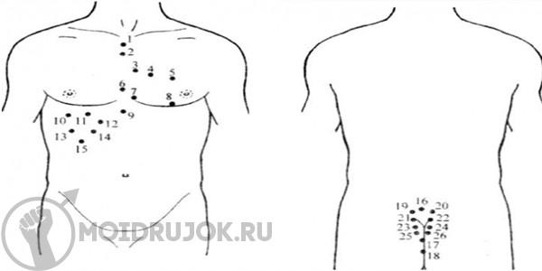 Простатит гирудотерапия схема простатит у мужчин опасен для женщин