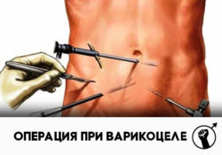 Операция варикоцеле