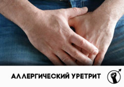аллергический уретрит