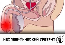 бактериальный неспецифический уретрит