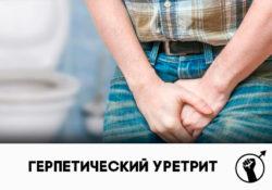 Герпетический уретрит: симптомы и лечение