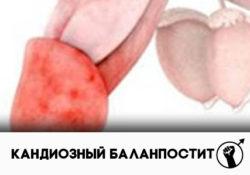 кандидозный баланопостит у мужчин лечение