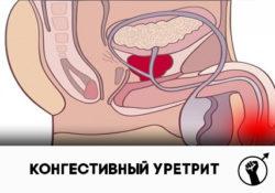 Конгестивный уретрит: симптомы и лечение