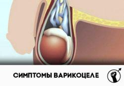 варикоцеле у мужчин симптомы и лечение