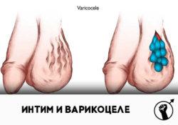 Интимная жизнь после варикоцеле: можно ли заниматься сексом?